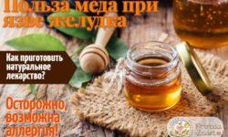 Мед при язве желудка: как принимать, чтобы облегчить неприятные симптомы