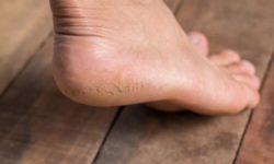 Трещины на пятках, лечение в домашних условиях