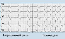Тахикардия - лечение в домашних условиях по народным рецептам