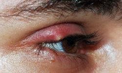 Эффективное лечение ячменя на глазу в домашних условиях